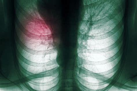 Lobectomy Lung Surgery: Types, Complications, and Prognosis